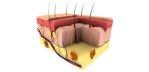 Łysienie androgenowe umężczyzn
