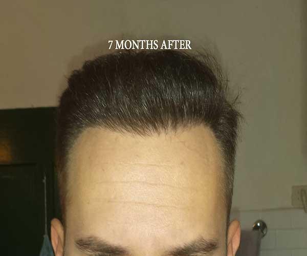 5 - 7 miesięcy pozabiegu przód