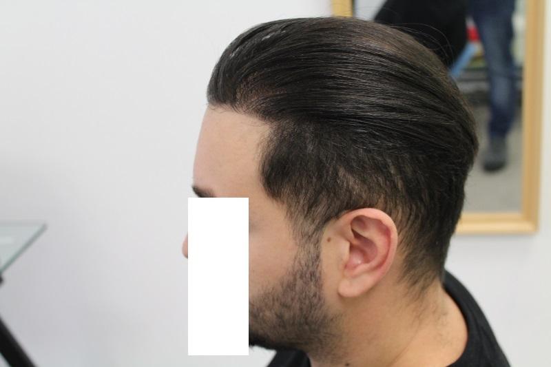 10 - 16 miesięcy pozabiegu lewy profil