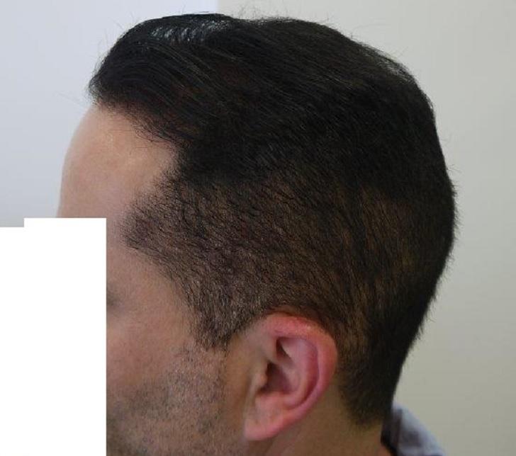 10 - 6,5 miesięcy pozabiegu lewy profil