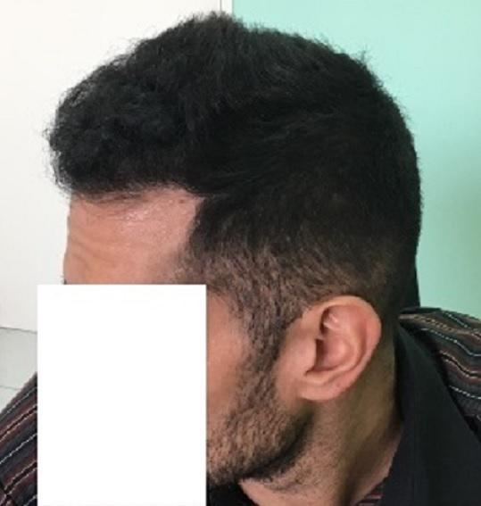 10 - 8 miesięcy pozabiegu lewa strona