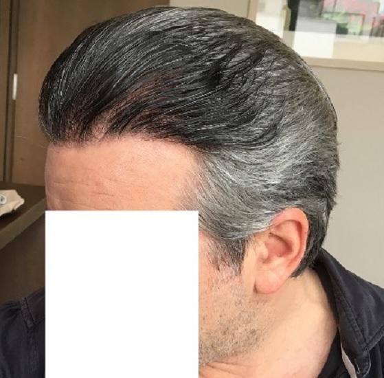 11 - 15 miesięcy pozabiegu lewa strona