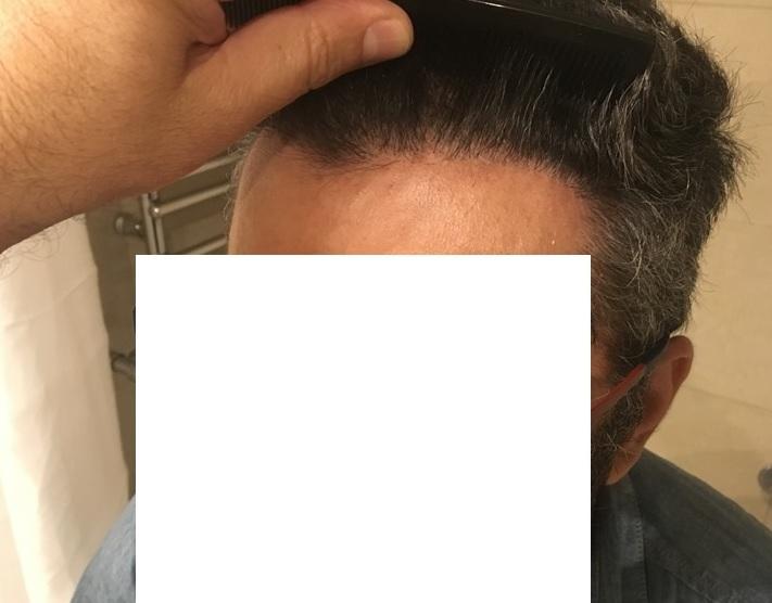 11 - 8 miesięcy pozabiegu lewa strona