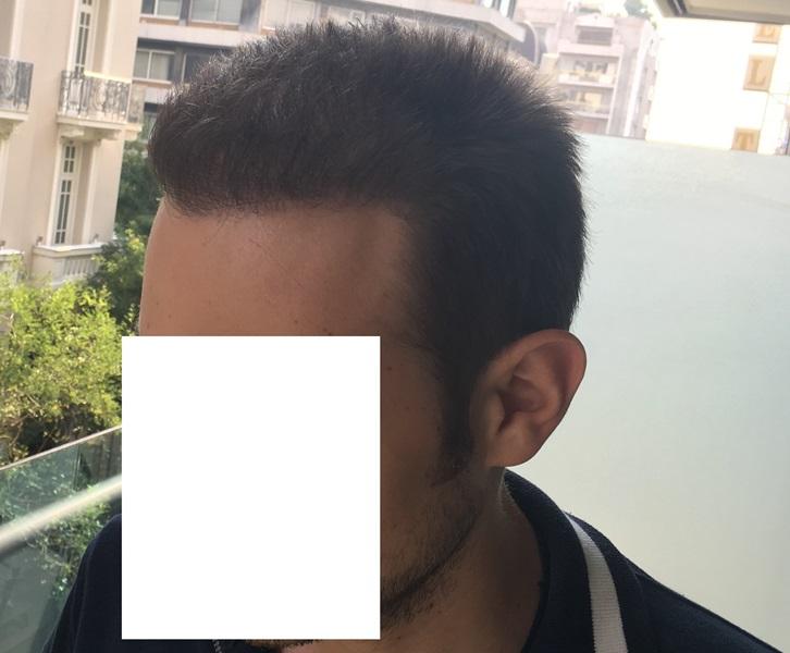14 - 13 miesięcy pozabiegu lewa strona