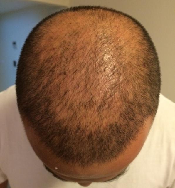 8 - 10 miesięcy pozabiegu