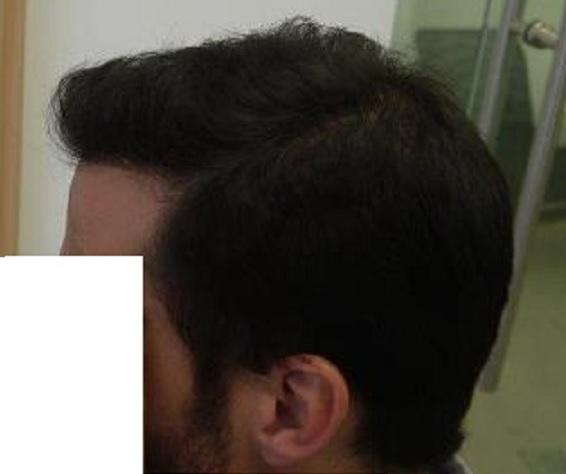 9 - 11 miesięcy pozabieu lewy profil