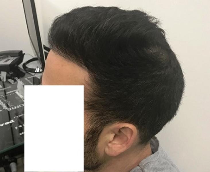 9 - 36 miesięcy pozabiegu prawy profil