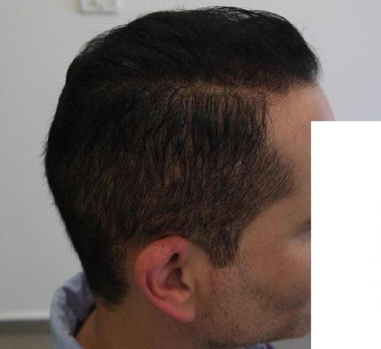 9 - 6,5 miesięcy pozabiegu prawy profil
